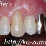 歯周病で骨がやせた場合のインプラント手術