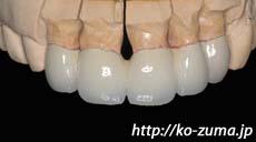 前歯の歯並びと歯茎が気になる