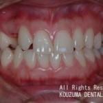 元から歯がない場合のインプラント