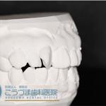 矯正器具を使わずに歯並びをキレイにしたい ワックスモールド