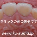 フランスからの患者様☆神経のない変色した歯を白くしたい