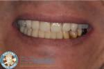 鹿児島の歯医者 違和感のない総入れ歯 インプラント義歯