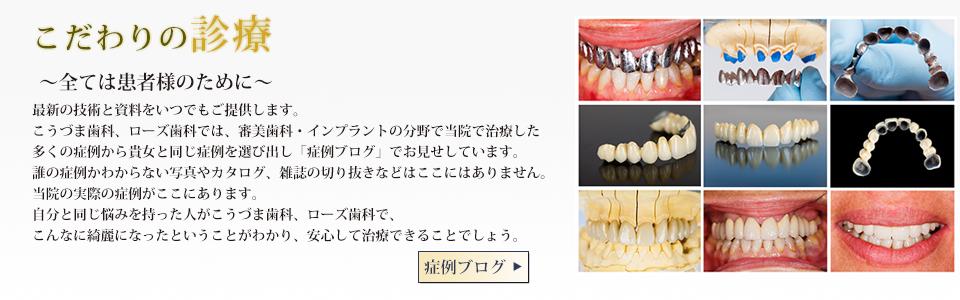鹿児島 審美歯科